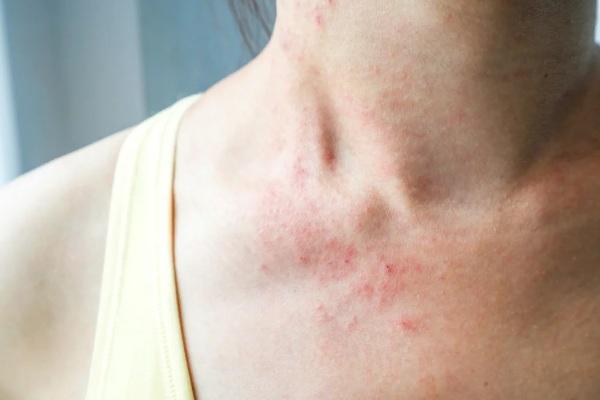 Сыпь при инфекционных заболеваниях. Виды, диагностика, как отличить у детей, взрослых, как лечить
