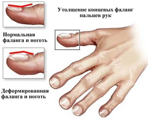 Болезнь Крона. Симптомы и лечение, что это такое, классификация, клинические рекомендации