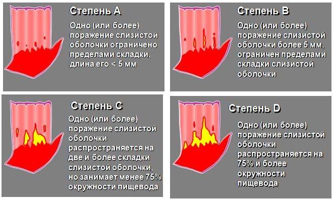 Эзофагит. Симптомы и лечение лекарствами, народными средствами, диета