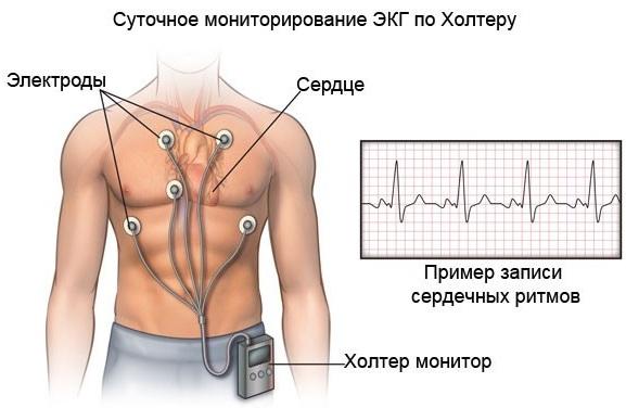 Замедление внутрипредсердной проводимости на ЭКГ. Признаки, причины, лечение