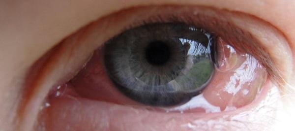 Левофлоксацин (Levofloxacin) капли глазные. Цена, инструкция по применению, аналоги