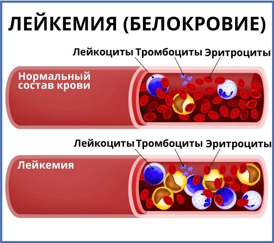 Признаки лейкоза крови у взрослых