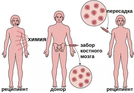 Лейкемия. Симптомы у взрослых, детей, анализ крови, лечение народными средствами, препаратами