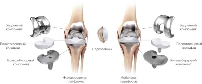 Эндопротез коленного сустава. Цена, виды, срок службы, фото, отзывы. Zimmer, Stryker, Biomet
