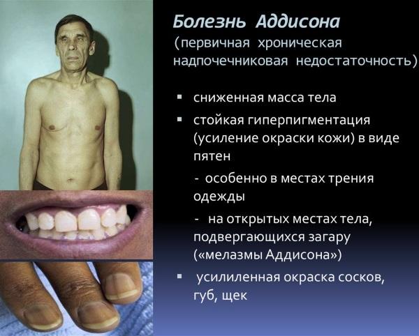 Надпочечниковая недостаточность. Симптомы у женщин, детей, мужчин, диагностика, рекомендации, лечение