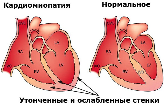 Нервно-мышечные заболевания. Классификация, этиология, неврология, наследственные, хронические. Симптомы и лечение у детей, взрослых