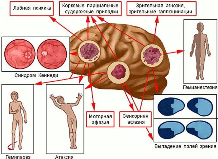 Опухоль в голове. Симптомы у взрослого, ребенка на ранней стадии, как определить, к какому врачу обратиться