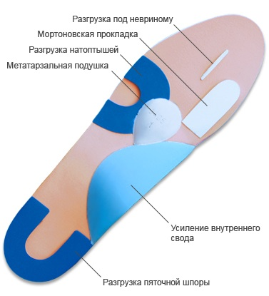 Плантарный фасцит стопы. Лечение народными средствами, мазями, гимнастика