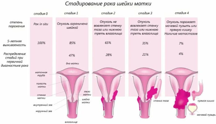 Плоскоклеточная карцинома шейки матки с тенденцией к ороговению. Что это такое, симптомы, прогноз, лечение