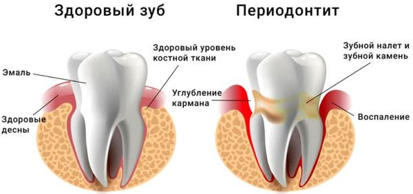 Привкус крови во рту. Причины у женщин, мужчин по утрам после кашля, бега, еды, сна, как избавиться