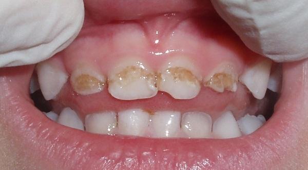 Стоматолог-ортопед. Что делает взрослый, детский, разница со стоматологом-ортодонтом