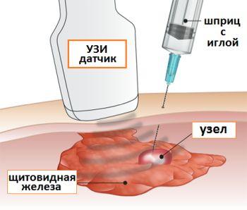 Субклинический гипертиреоз. Симптомы и лечение, что это такое, причины