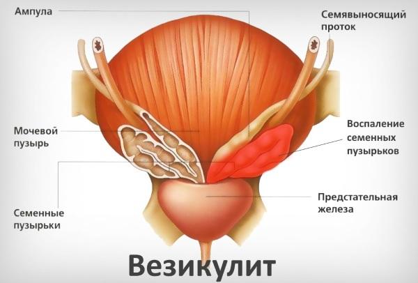 ТРУЗИ. Подготовка к исследованию предстательной железы, мочевого пузыря, расшифровка результатов