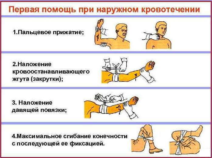 Венозное кровотечение. Признаки, первая помощь, чем характеризуется, как остановить