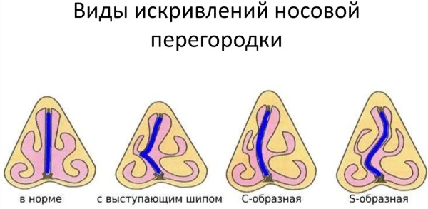 Аквалор (Aqualor) для промывания носа. Инструкция по применению, аналоги, цена