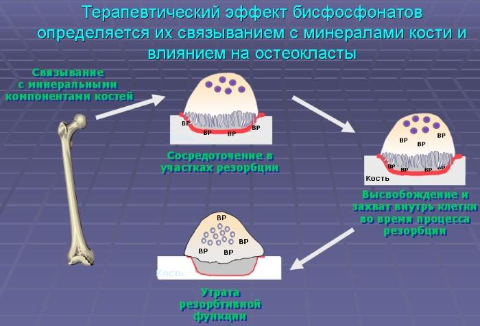 Бисфосфонаты для лечения остеопороза, суставов, костей. Что это такое, польза, вред