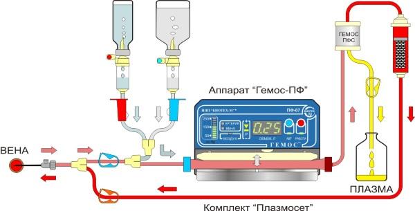Чистка крови плазмаферез. Цена, что это такое, показания, противопоказания