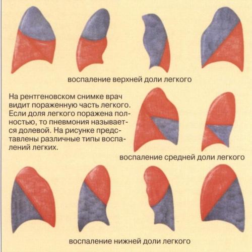 Диагностика пневмонии у взрослых, детей, пожилых дифференциальная, лучевая, лабораторная. Методы, расшифровка