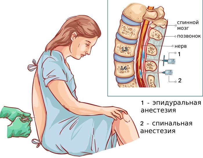 Эпидуралка (эпидуральная анестезия) при родах. Отзывы, что это такое, последствия, противопоказания