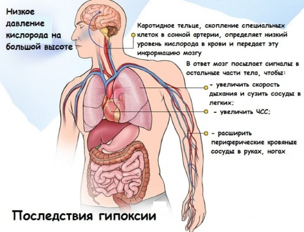 Кислородное голодание мозга. Симптомы, лечение у взрослых, детей, последствия