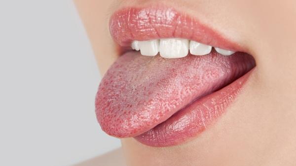 Коричневый налет на языке у взрослых, ребенка. Причины, что это может значить, как избавиться