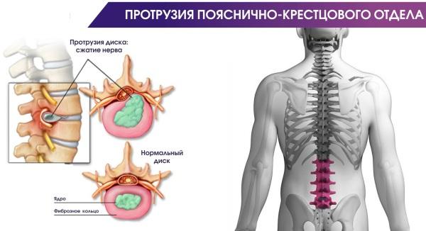 МРТ крестцово-подвздошных сочленений. Что это такое, подготовка