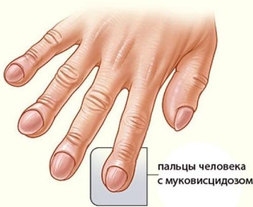 Муковисцидоз. Симптомы у взрослых, детей, лечение, клинические рекомендации
