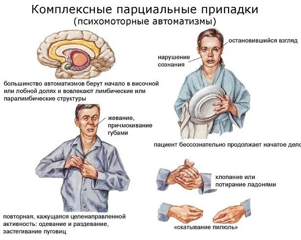 Парциальные судороги. Что это такое, причины, симптомы, лечение