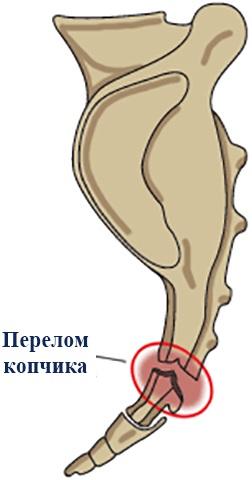 Перелом копчика. Симптомы и последствия у женщин, ребенка, мужчин, чем лечить