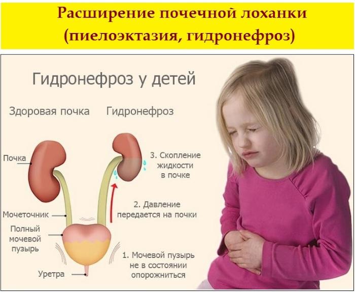 Пиелоэктазия почек у ребенка, взрослых, плода. Что это такое, симптомы, лечение