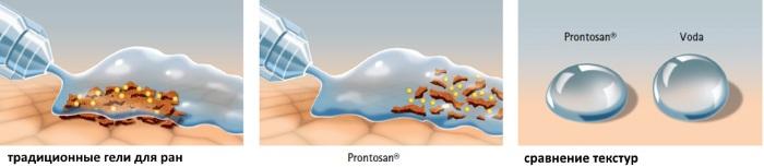 Пронтосан (Prontosan) гель для заживления ран. Инструкция, аналоги, цена