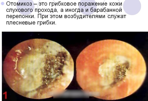 Противогрибковые капли в уши. Названия, список, цены