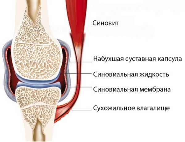 Синовит плечевого сустава операция