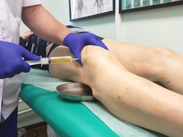 Синовит коленного сустава. Лечение: мази, гели, уколы