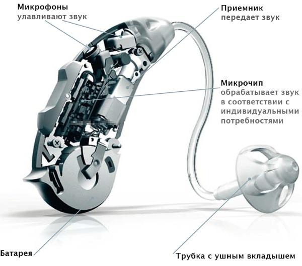 Слуховые аппараты для пожилого человека. Цена, как подобрать, где купить