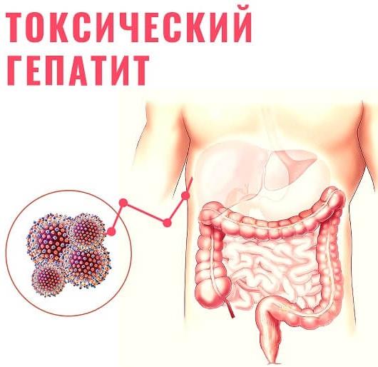 Токсический гепатит. Что это такое, симптомы, лечение, клинические рекомендации