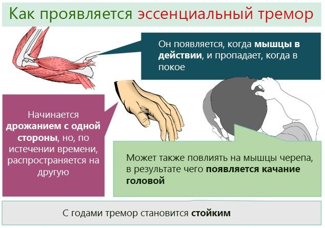 Тремор головы. Причины у взрослых, подростка, грудничка, лечение при волнении, шейном остеохондрозе, неврозе