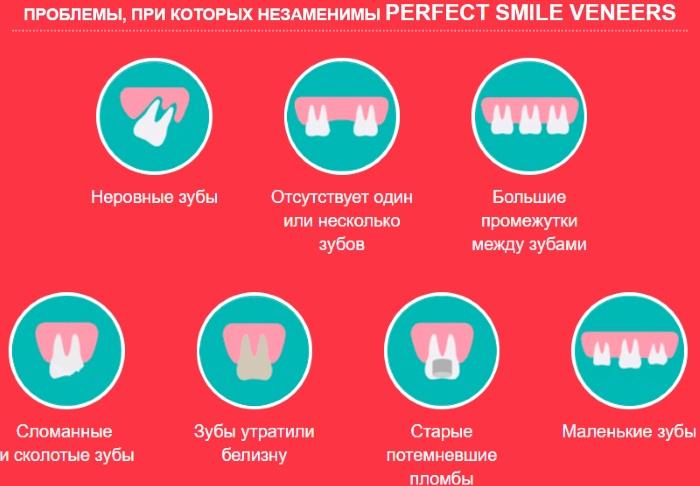 Виниры Перфект Смайл (Perfect Smile Veneers). Отзывы реальные, инструкция, как установить