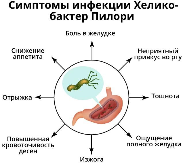 Лечение гастрита с хеликобактер пилори. Схема, народные средства, медикаменты, отзывы