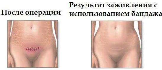 Бандаж послеоперационный на брюшную полость. Как выбрать размер, сколько носить, цена