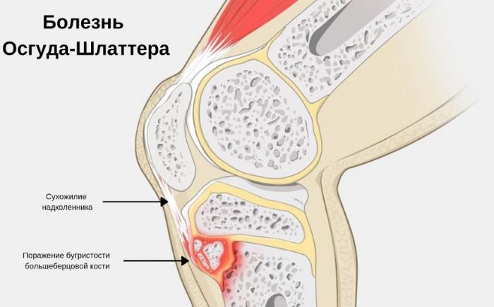 Болезнь Осгуда-Шлаттера. Рентген, стадии, описание, лечение