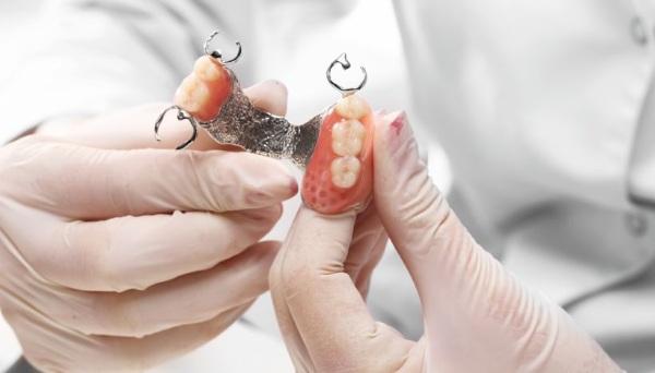 Бюгельные протезы на нижнюю/верхнюю челюсть. Фото на кламмерах, аттачменах, замках, шинирующий, квадротти