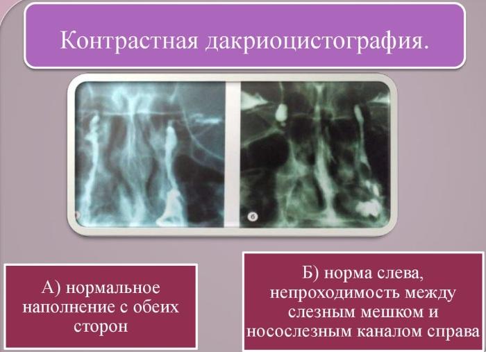 Дакриоцистит у взрослых. Лечение, симптомы, зондирование, способы без операции, антибиотики