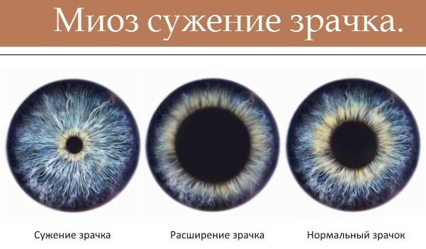 Дикло-Ф (Diclo-F) глазные капли. Цена, инструкция по применению, аналоги