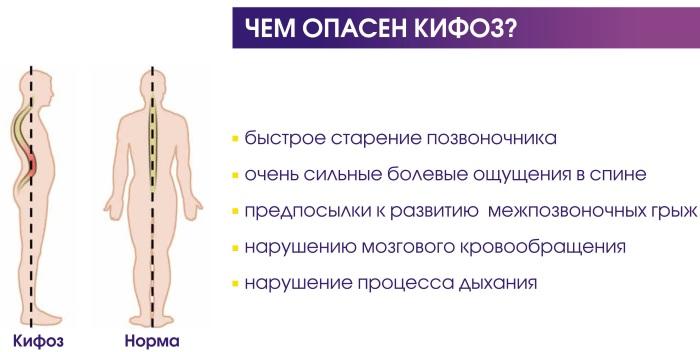 Грудной кифоз усилен. Что это значит, симптомы, лечение, ЛФК, упражнения