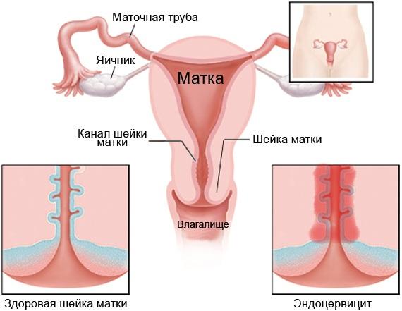 Хронический церцевит шейки матки. Лечение травами, средствами