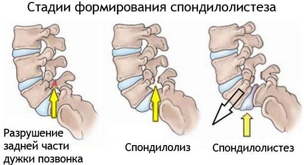 Хруст в шее при поворотах головы в стороны у основания черепа сзади, головная боль. Причины, лечение