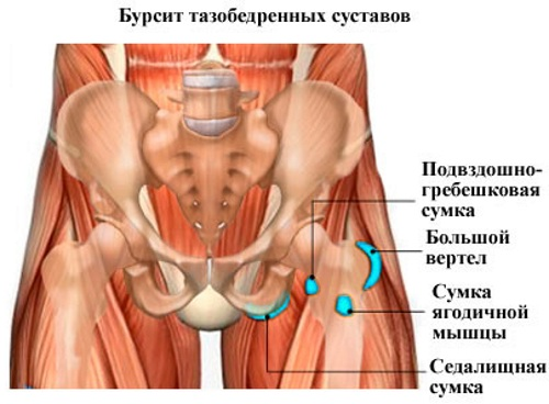 Импиджмент-синдром тазобедренного сустава. Симптомы, признаки, лечение