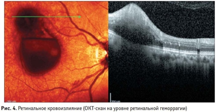 Кровоизлияние в глаз. Причины, лечение, капли для быстрого рассасывания