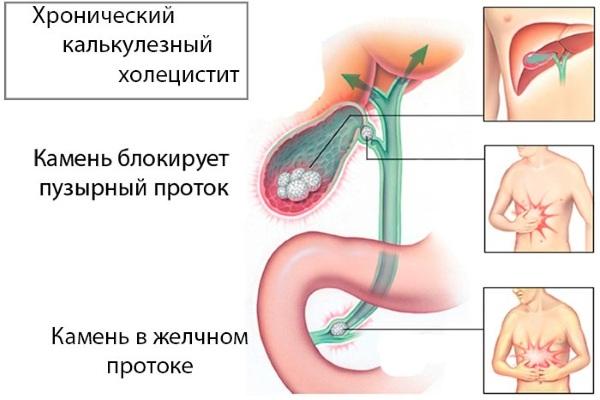 Хронический калькулезный холецистит. Симптомы и лечение, клинические рекомендации